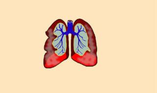 bronşit nedir
