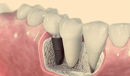 dental implant tedavisi